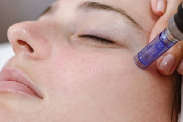 Skin rejuvenation with microneedle
